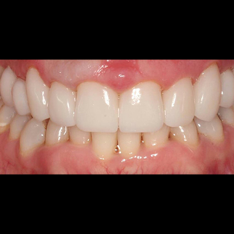 Healthy aligned smile after dental treatment