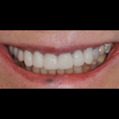 Dental restoration replaced with new beautiful restoration