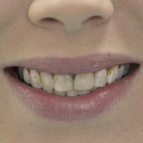 Decayed and discolored top teeth