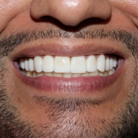 Brilliant smile after teeth whitening