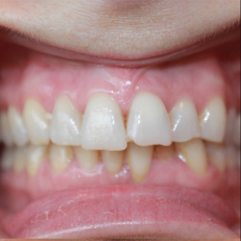 Damaged front tooth before dental treatment