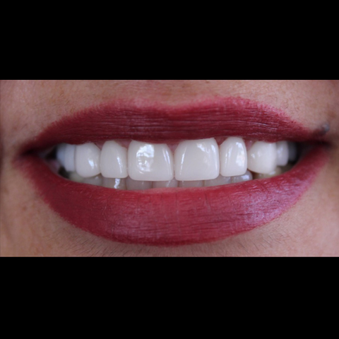 Gap between front teeth closed with dental treatment