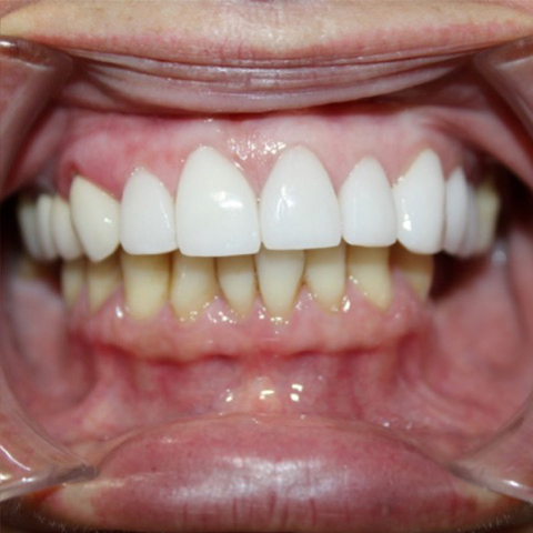 Brigtened smile after professional teeth whitening