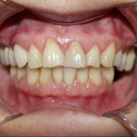 Yellowed smile before professional teeth whitening