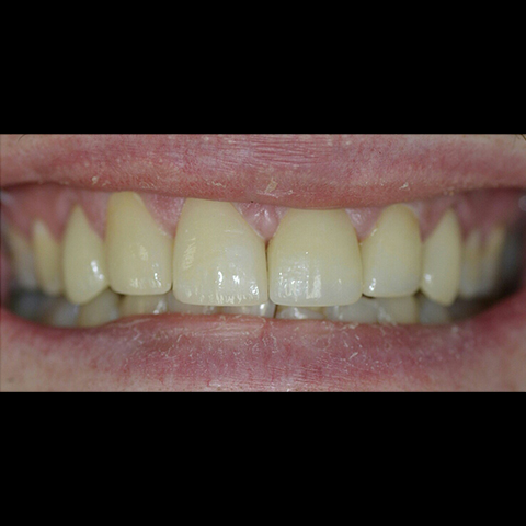 Perfectly aligned smile after dental treatment