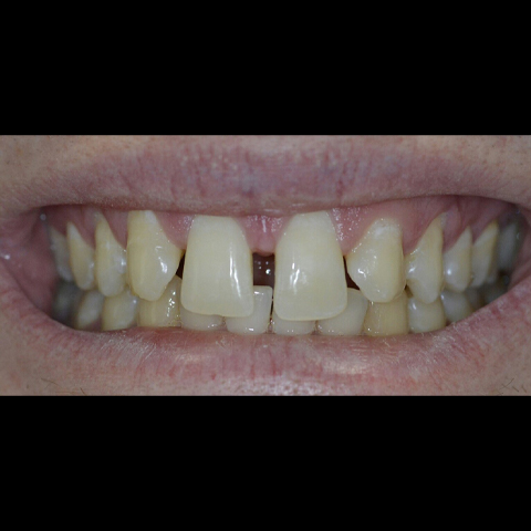 Large gap between front two teeth