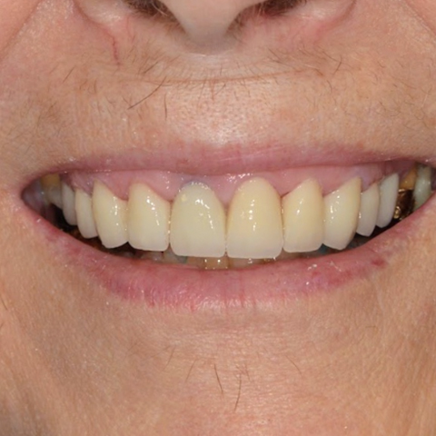 Healthy smile after dental treatment