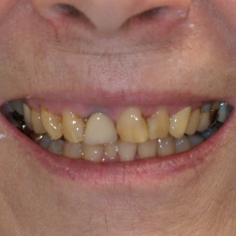 Decayed smile before dental treatment