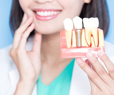 dentist holding dental implant in Spring