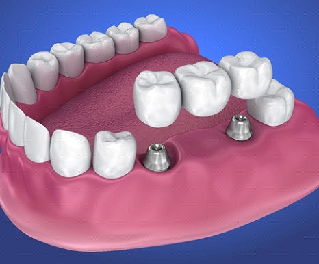 Animated implant-retained fixed bridge