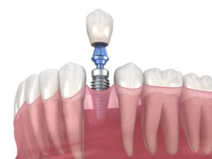 Digital model showing dental implant success.